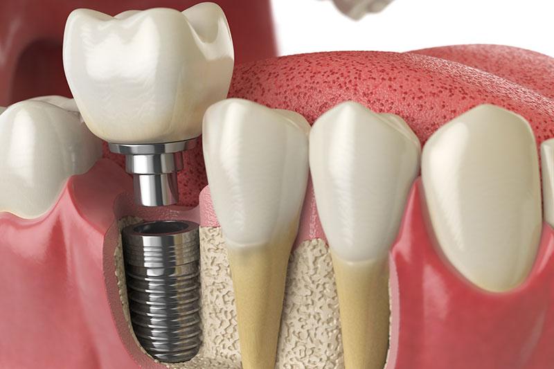 dentista en Pirámides, clínica dental en Pirámides.