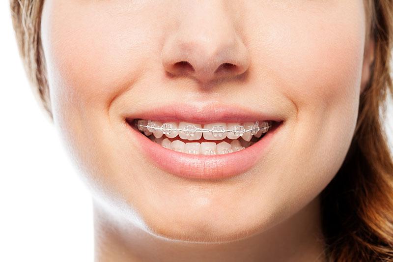 dentista en Pirámides, clínica dental en Pirámides