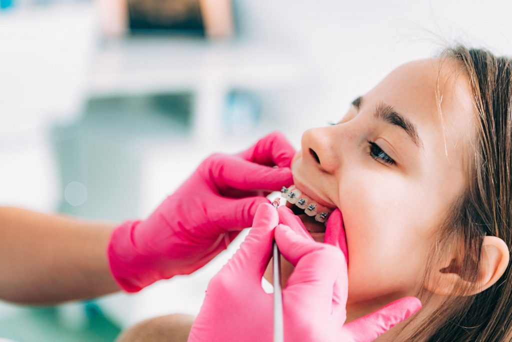 ortocia-infantil-myca-dental