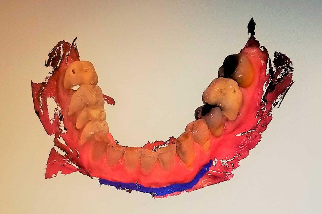 myca-tecnologia-scanner-intraoral