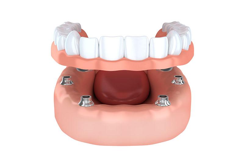 Te contamos qué tipos de implantes dentales hay