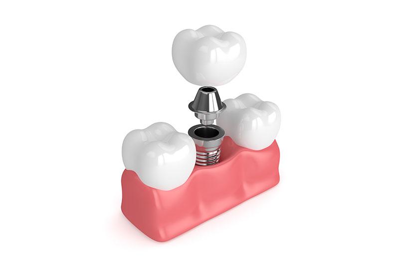 Te explicamos qué tipos de implantes dentales hay